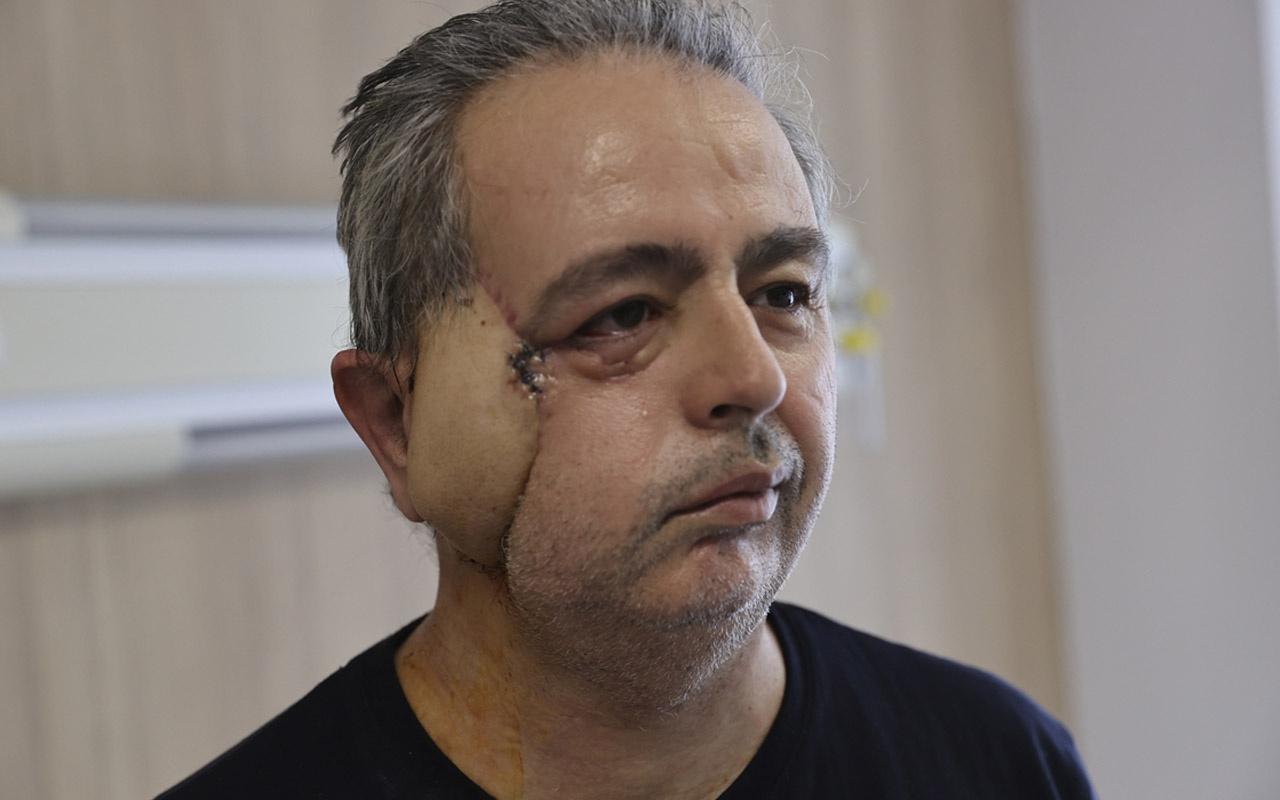 Antalya'da kanserden yüzünü kaybetti! Yapay kemik ve omzundan doku alınıp yüz yapıldı