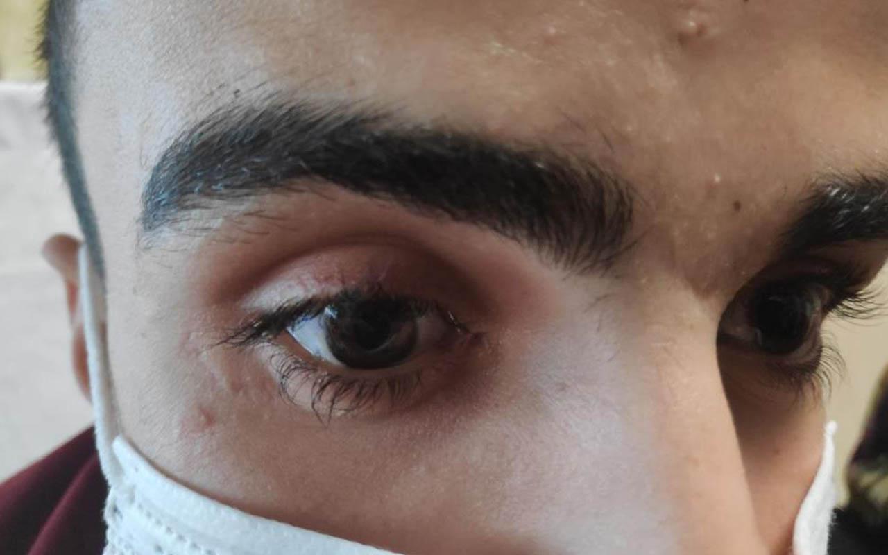 Gaziantep'te gözünde bir cam kırığıyla yaşadı! Hastane hatası yüzünden gözünden oldu