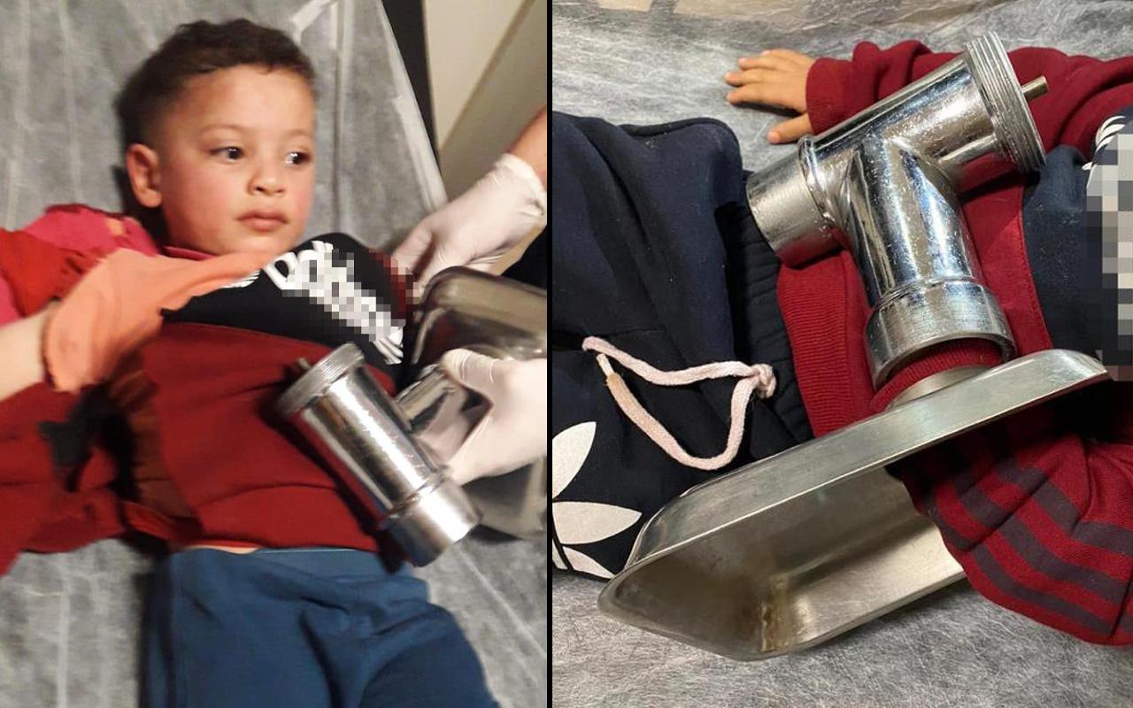 Eskişehir'de korkunç olay! Elini kıyma makinesine kaptırdı ampute edildi