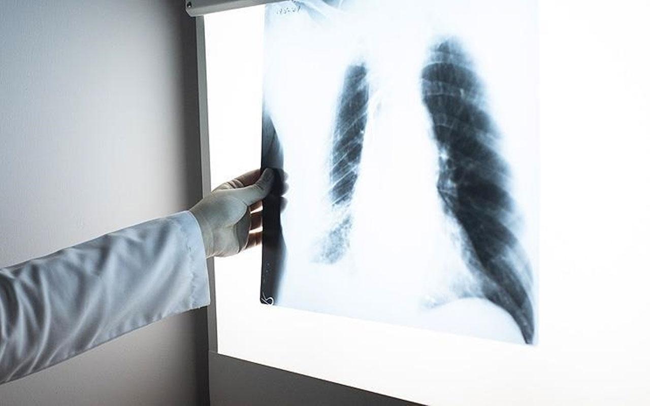 Sigara akciğere kızgın bir iğnenin batması gibi zarar veriyor
