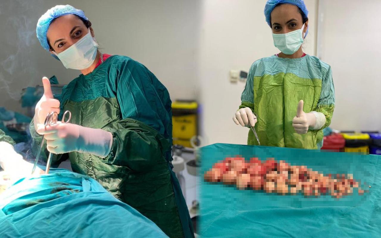 Malatya'da karın ağrısıyla hastaneye gitti! Doktor şok oldu: 72 tane çıktı