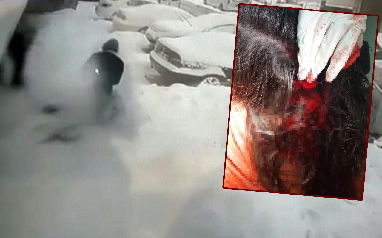 İstanbul Ataşehir'de pitbull saldırısına uğrayan küçük kız kanlar içinde kaldı
