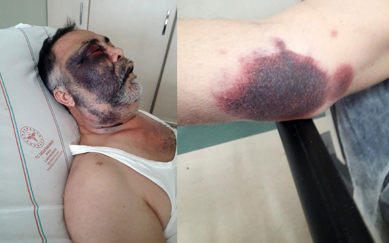 Feci olay Antalya'da yaşandı! Darp edilen yüzde 90 engelli Mümin Kara entübe edildi