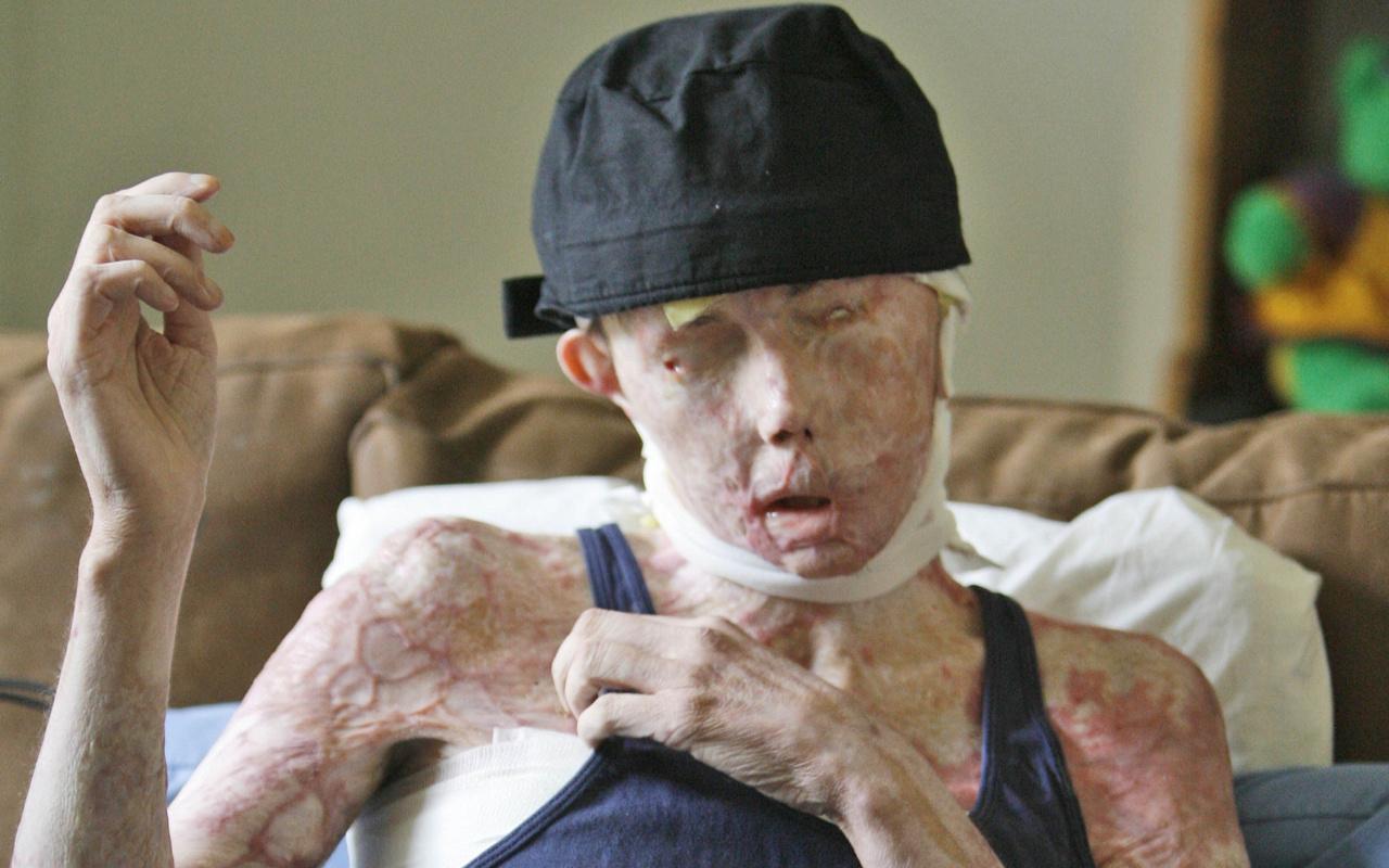 Kocası yüzüne kimyasal madde attı ikinci kez yüz nakli yapıldı! İşte son hali