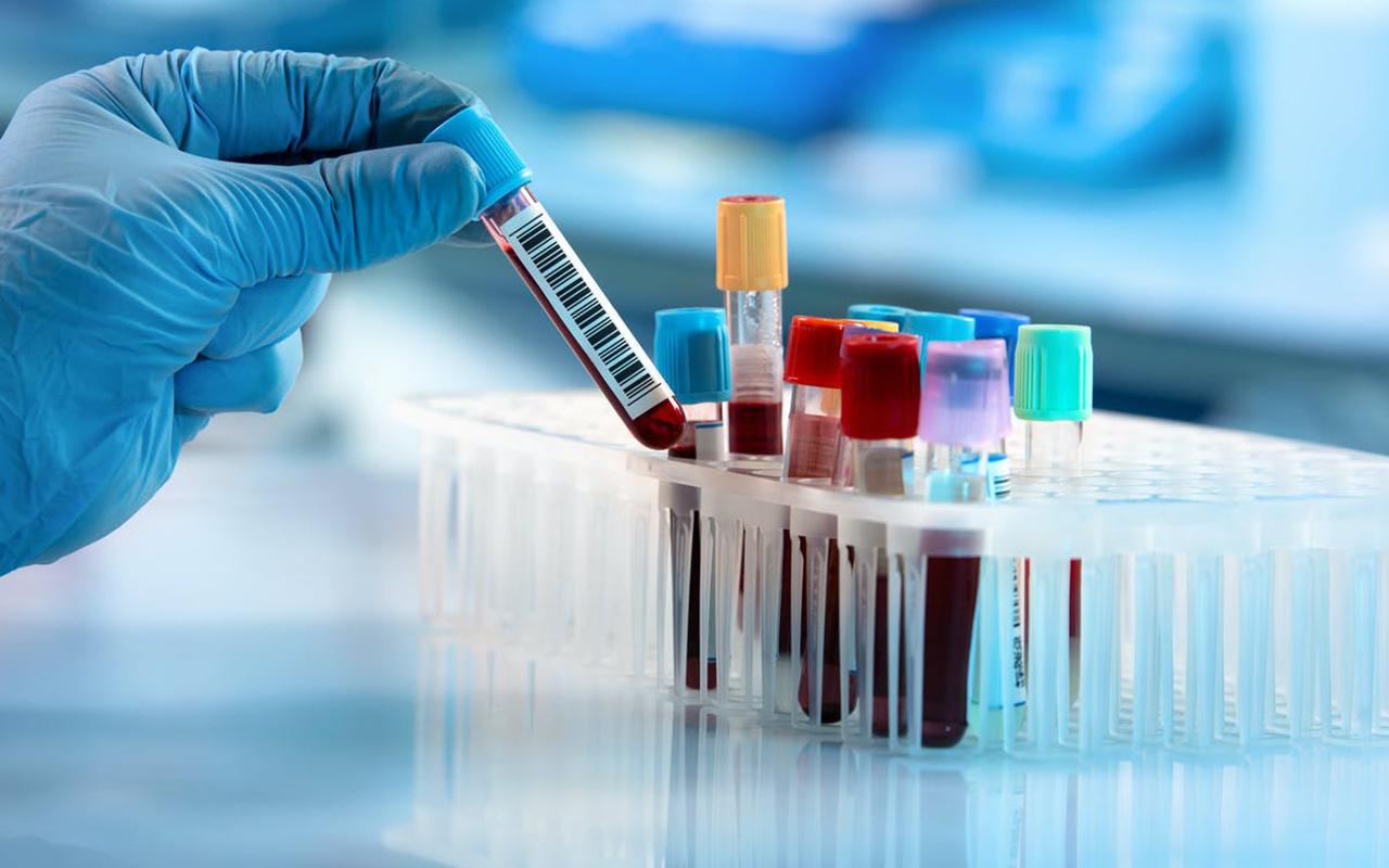 Kan grubu A olanların koronavirüse yakalanma riski daha yüksek olabilir