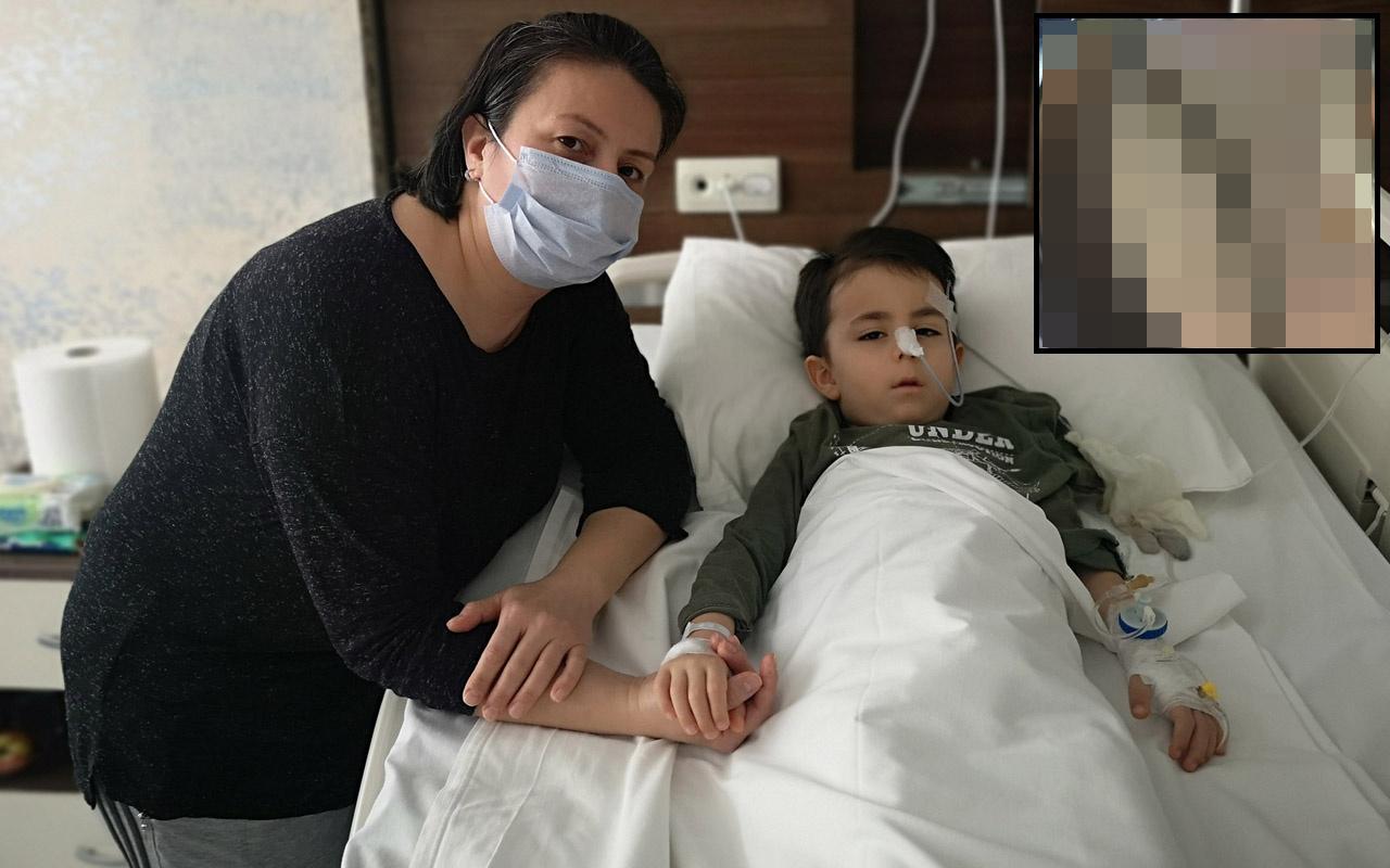 İstanbul'da karın ağrısıyla hastaneye gitti! Bağırsağından çıkanlar şok etti