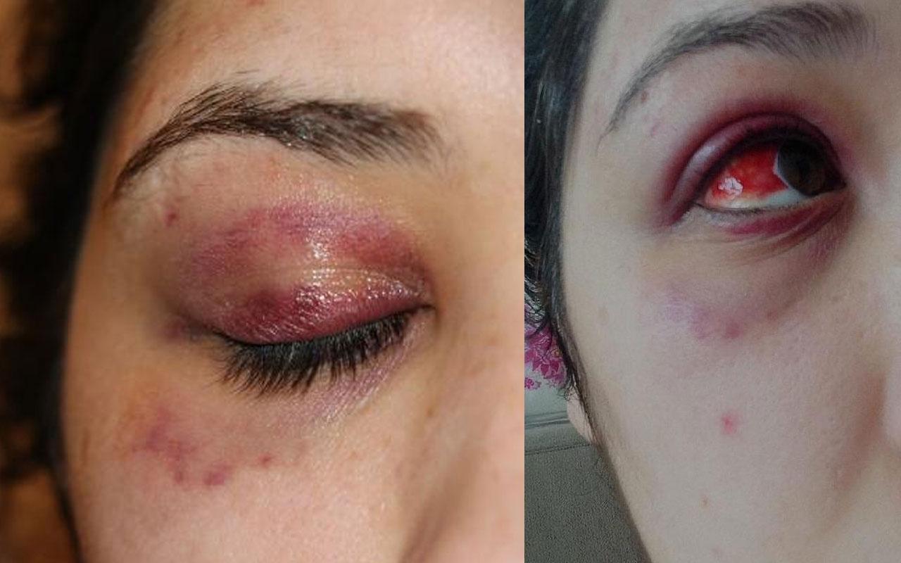 Karabük'te kadına şiddet! Gece saldırdı sabah 'Pide yaptırayım mı?' diye mesaj attı