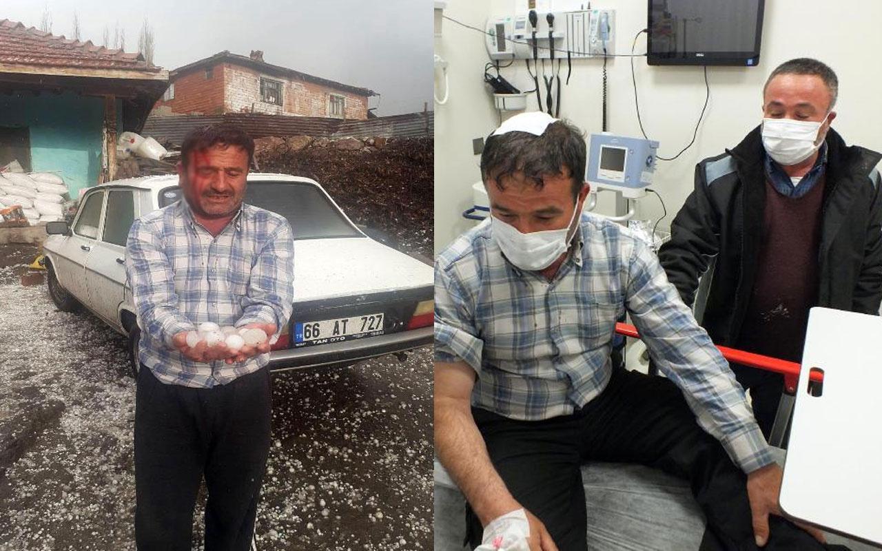 5 saniyede böyle oldu! Yozgat'ta ceviz büyüklüğündeki dolu hastanelik etti