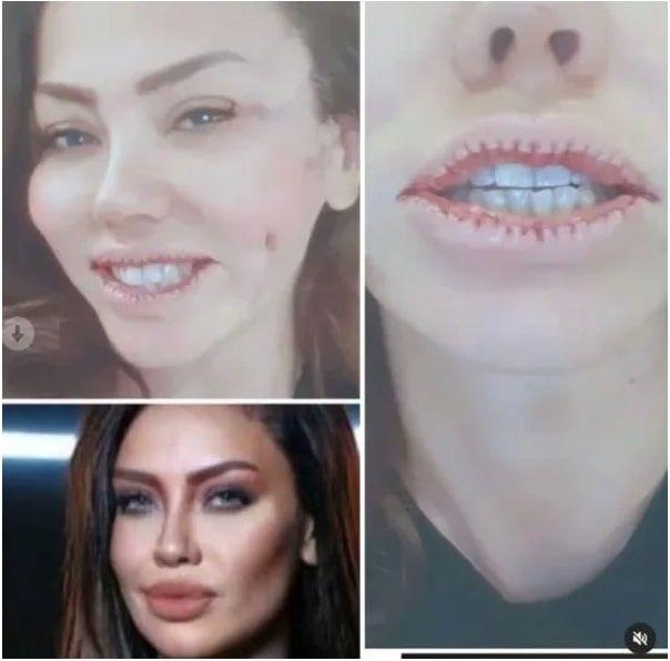 Şarkıcı Lara estetikle dudaklarını küçültmüştü eleştirilere isyanı bastı