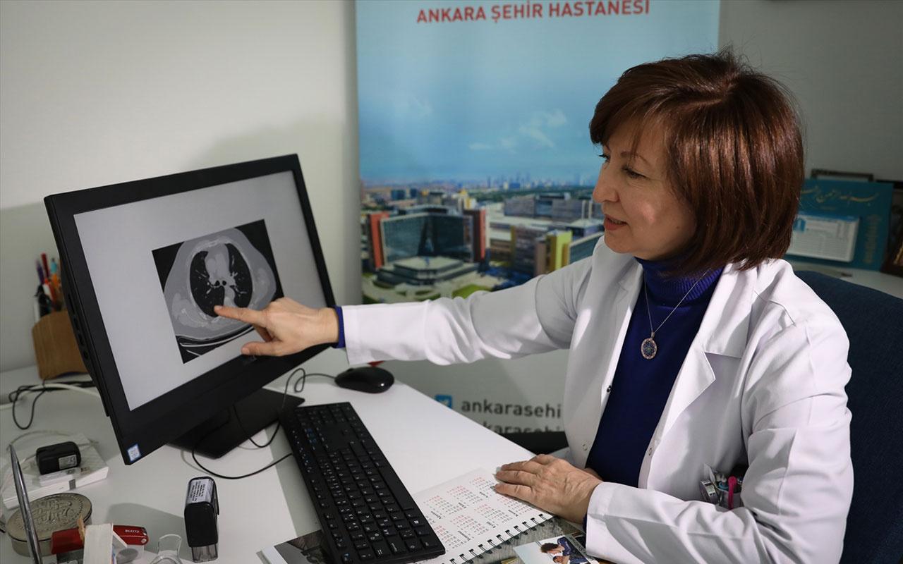 Kovid-19'u ağır geçirenler Ankara Şehir Hastanesi'nde kurulan poliklinikte takip ediliyor