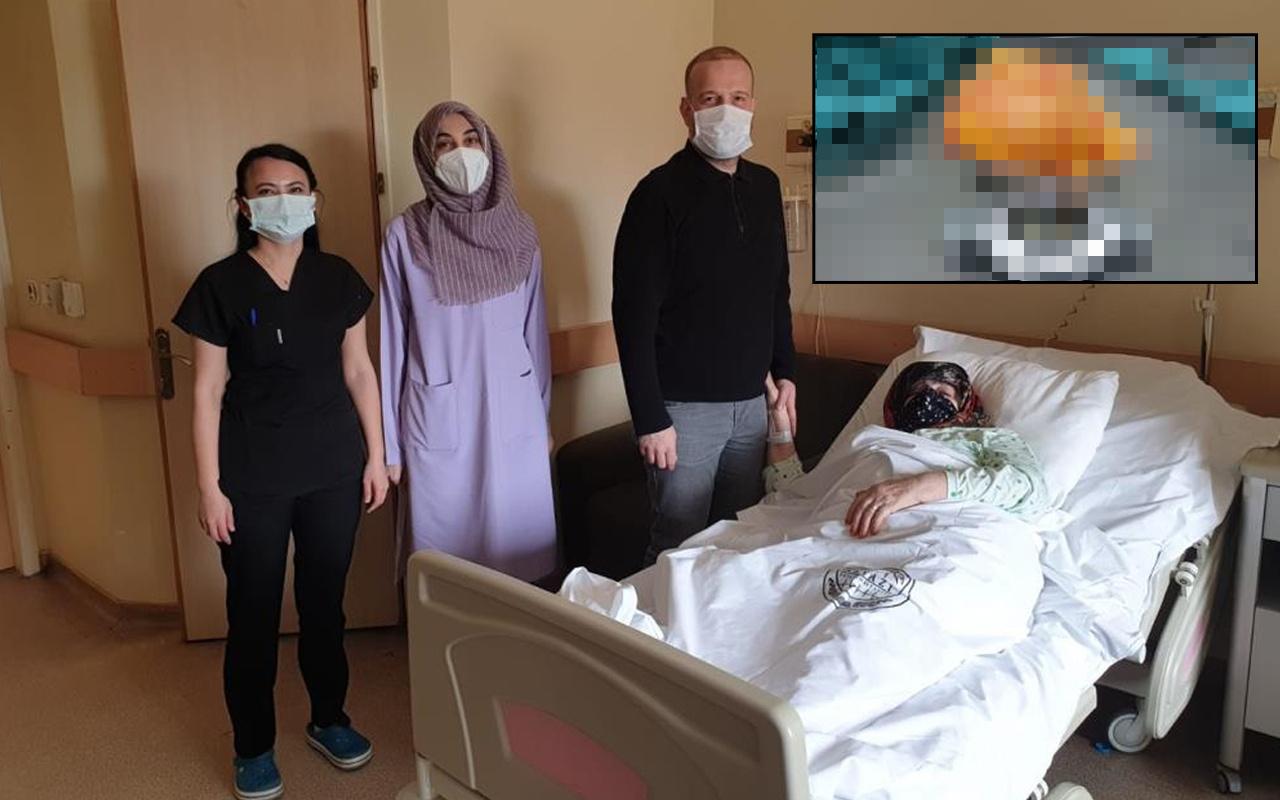 Sakarya'da kitle sebebiyle başvurdu dizinden çıkan doktorları şaşırttı