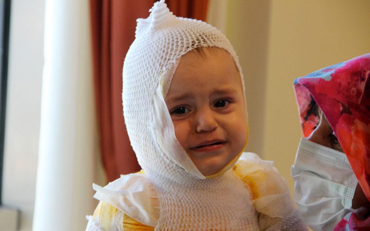 Kaynar süt faciası! Yusuf bebeğin tüm vücudu yandı