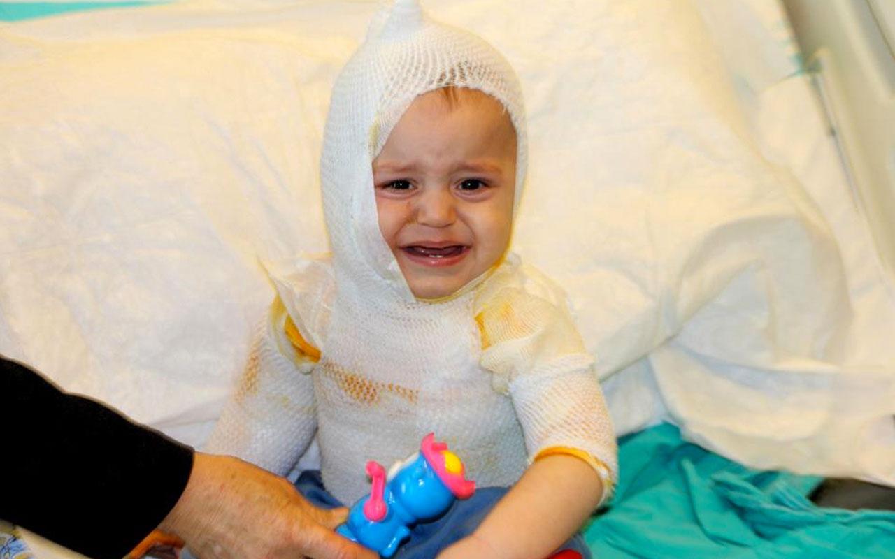 Erzincan'da üzerine kaynar süt dökülen 1 yaşındaki çocuk feci şekilde yandı