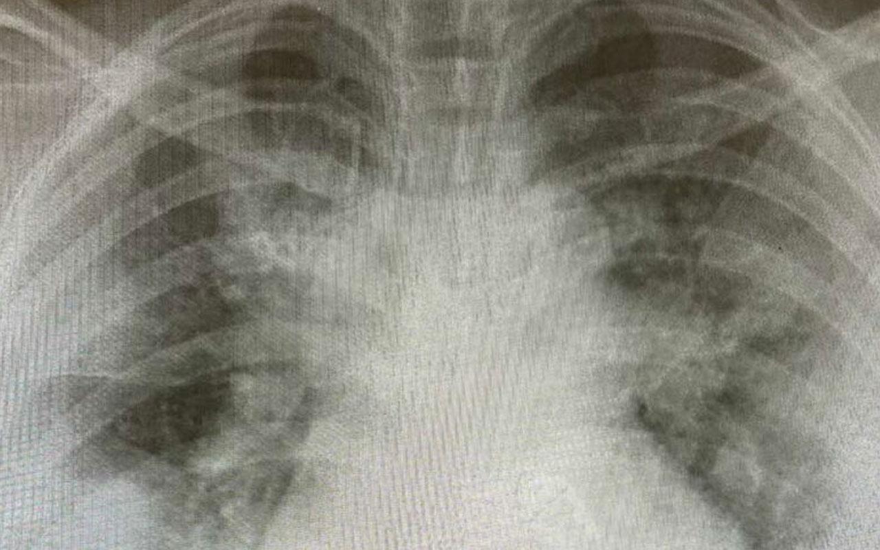 Kanada'da hastaların röntgenleri paylaşıldı! Yoğun bakımlar gençlerle dolu