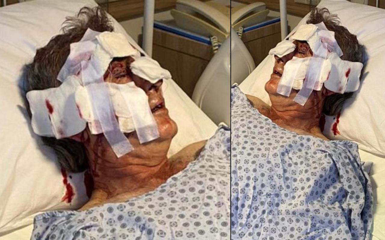 Antalya'da otelde hayatının şokunu yaşadı! Bacağını, kulağını, boynunu ısırdı