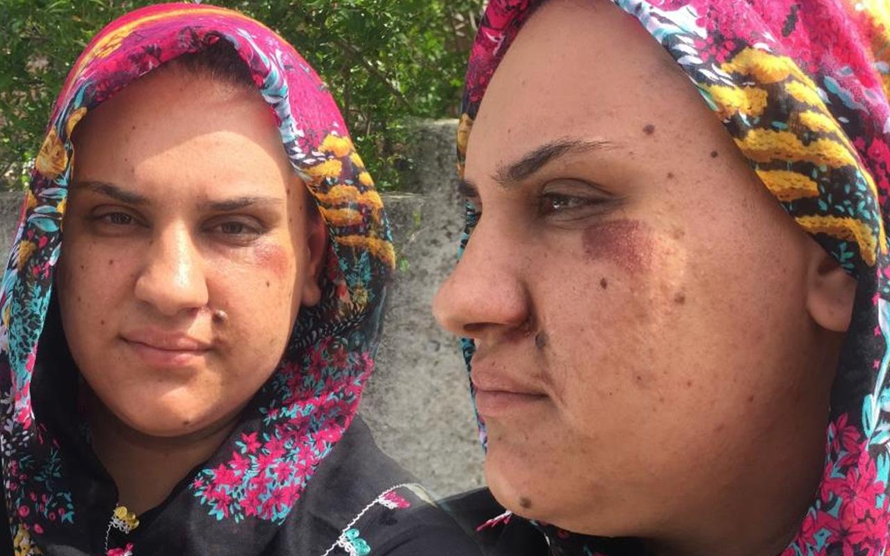 Adana'da 'bu bir canilik' deyip sokakta yaşadığı dehşeti anlattı: Görünce şüphelendim