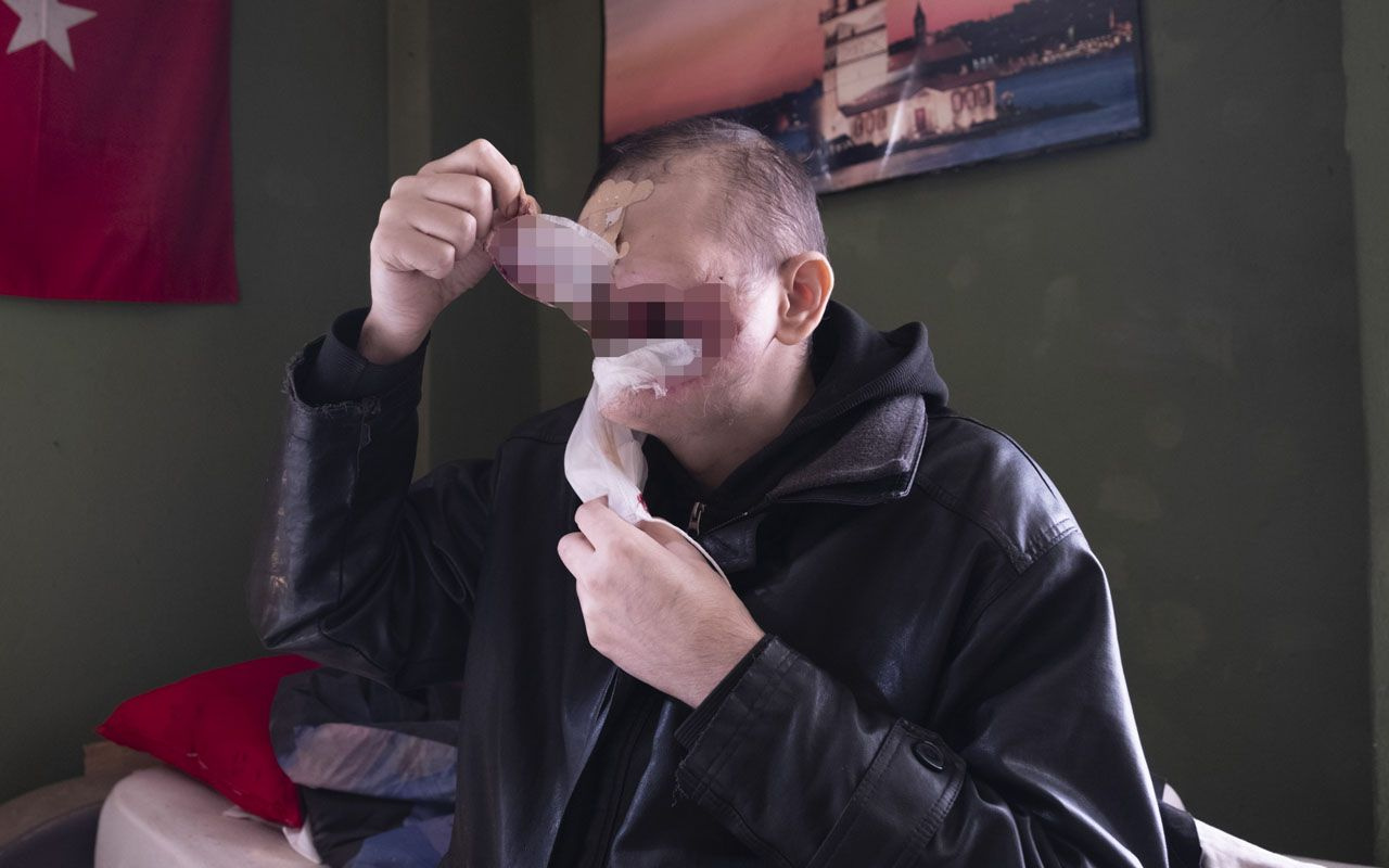 Bir siğille başladı yüzünü kaybetti! Konyalı baba çay içmeye ve kızını öpmeye hasret kaldı
