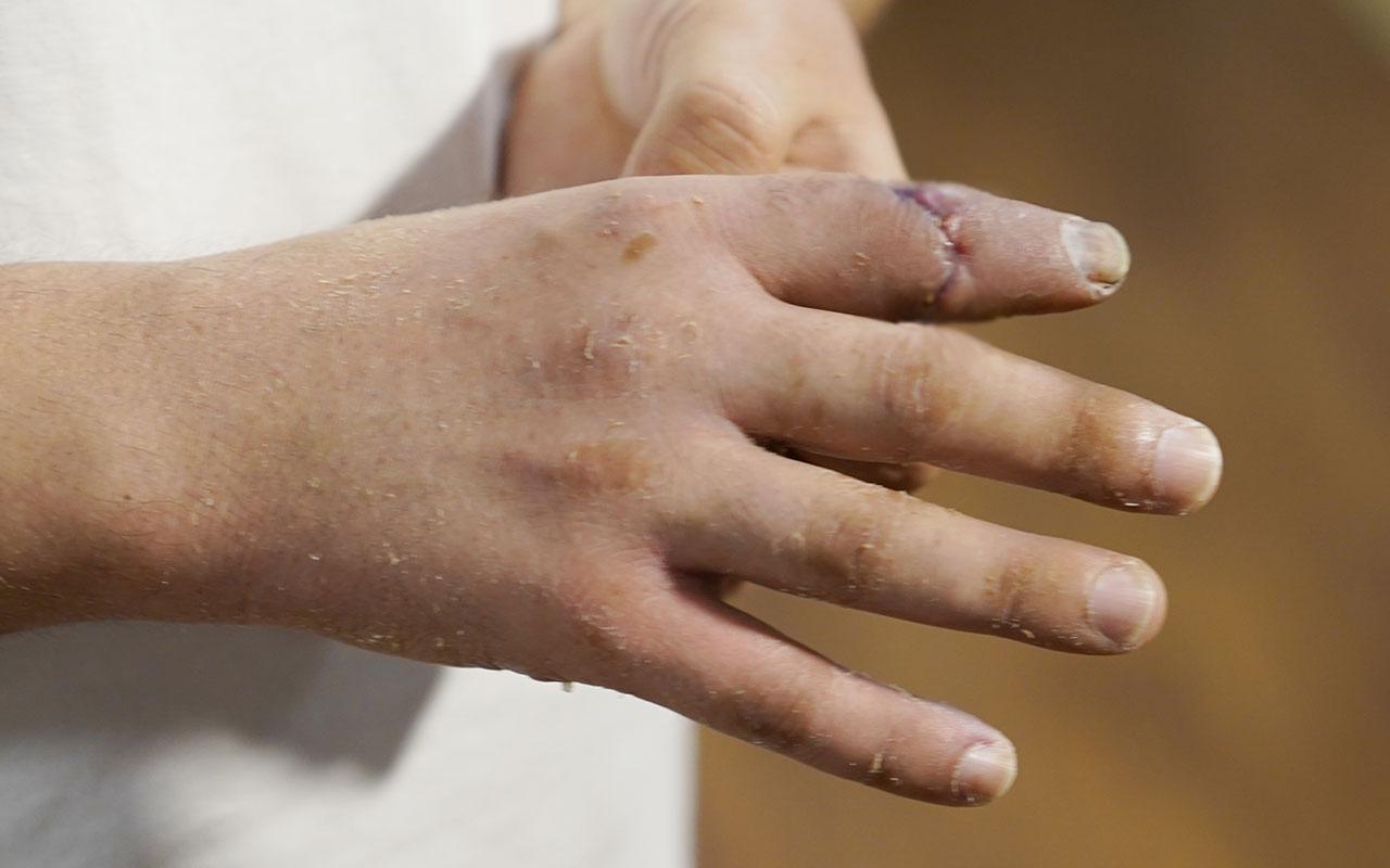 Malta'da kopan parmağını sırt çantasında Türkiye'ye getirdi! Ve o parmak yerine dikildi