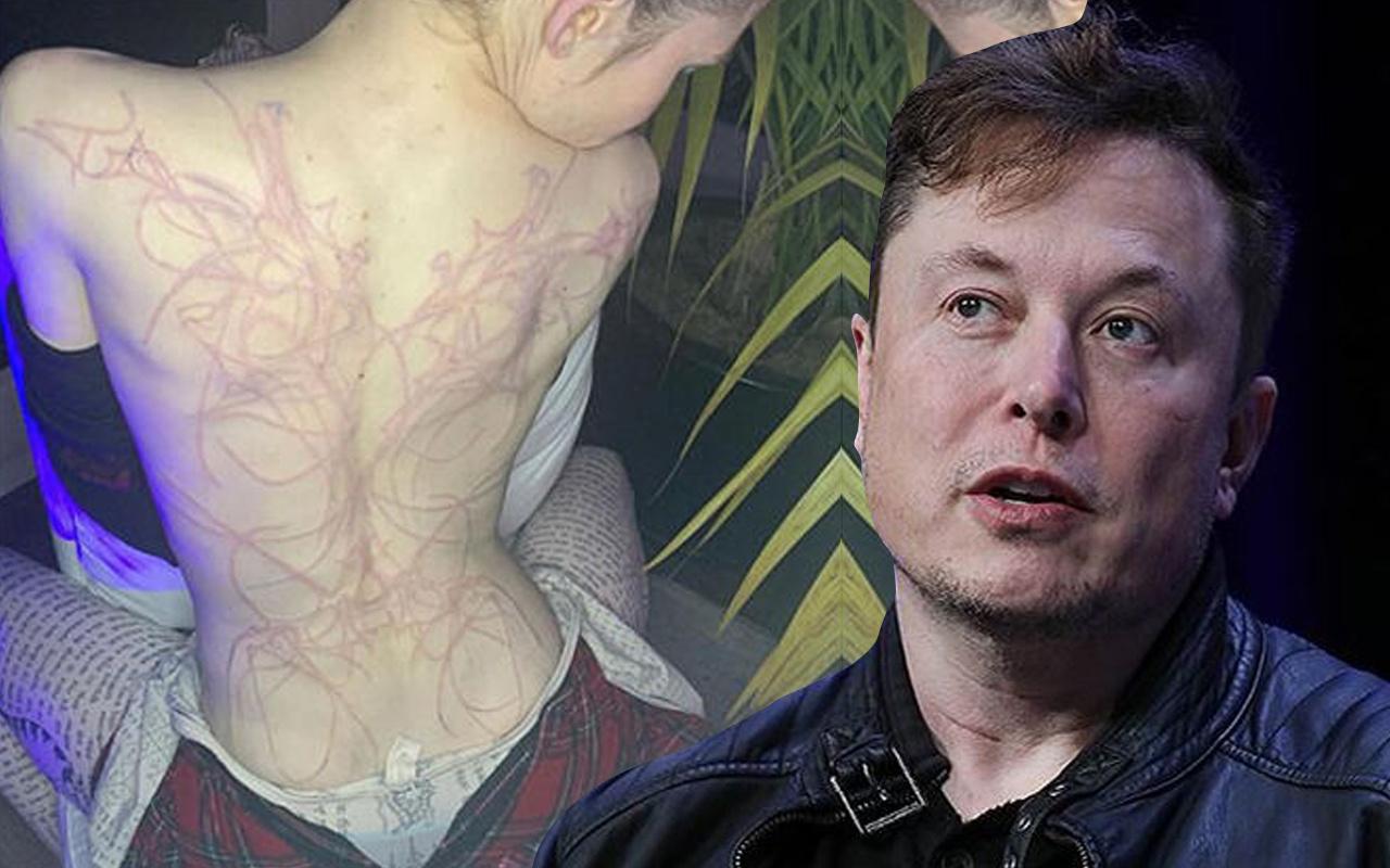 'Çok acıdı' deyip anlattı! Elon Musk'un sevgilisi Grimes'in sırtını bu halde gören şok oldu