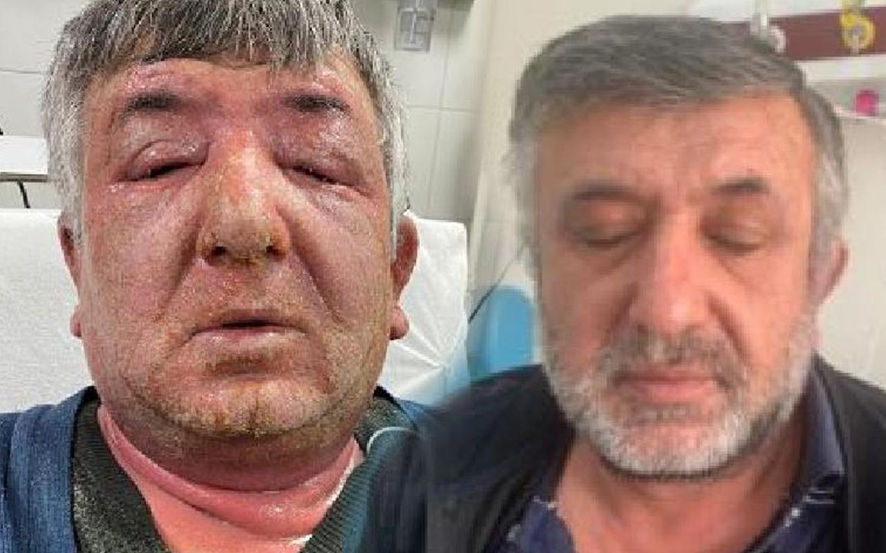 Ankara'da hayatının hatasını yaptı gözleri kapandı! Öldürecek gibi kaşıntı