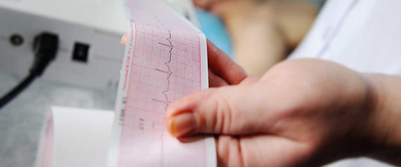 Taşikardi kalp çarpıntısı demek! Normal kalp hızı 100'ü geçerse...