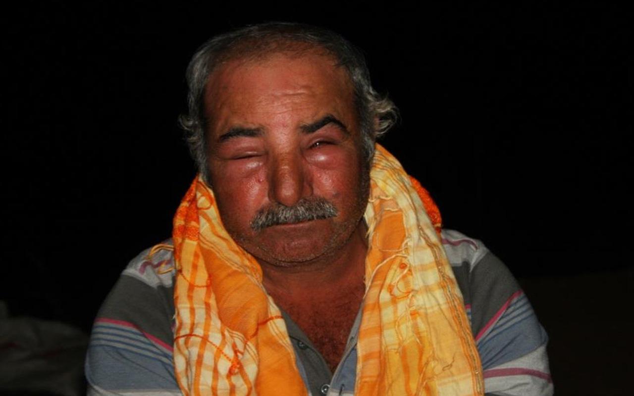 Antalya'da çoban neye uğradığını şaşırdı! Yüzü şişti gözleri kapandı: Saçımdan ayaklarıma kadar...