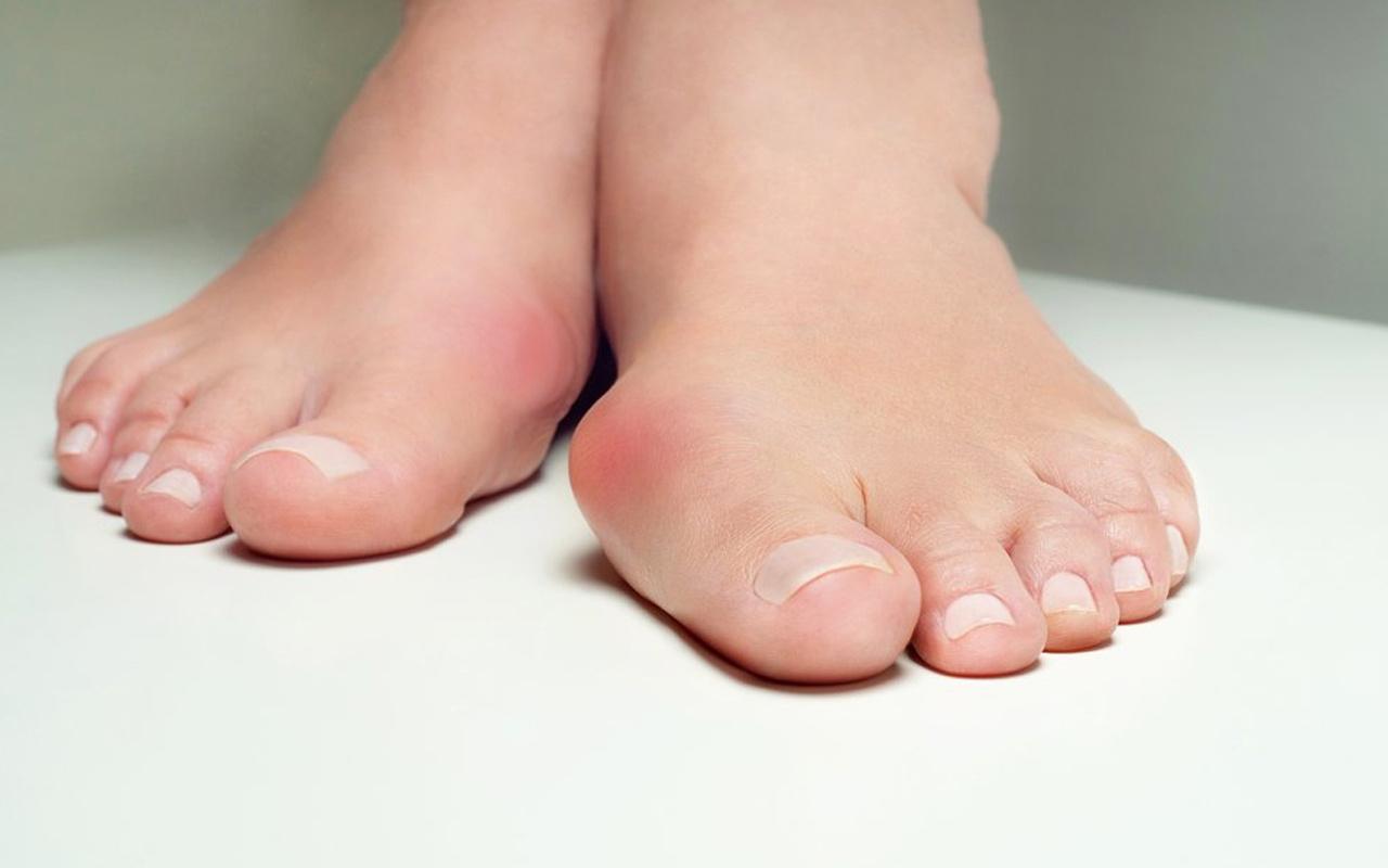 Ayak baş parmak çıkıntısı(Halluks valgus) nasıl düzelir evde ne yapmalı?