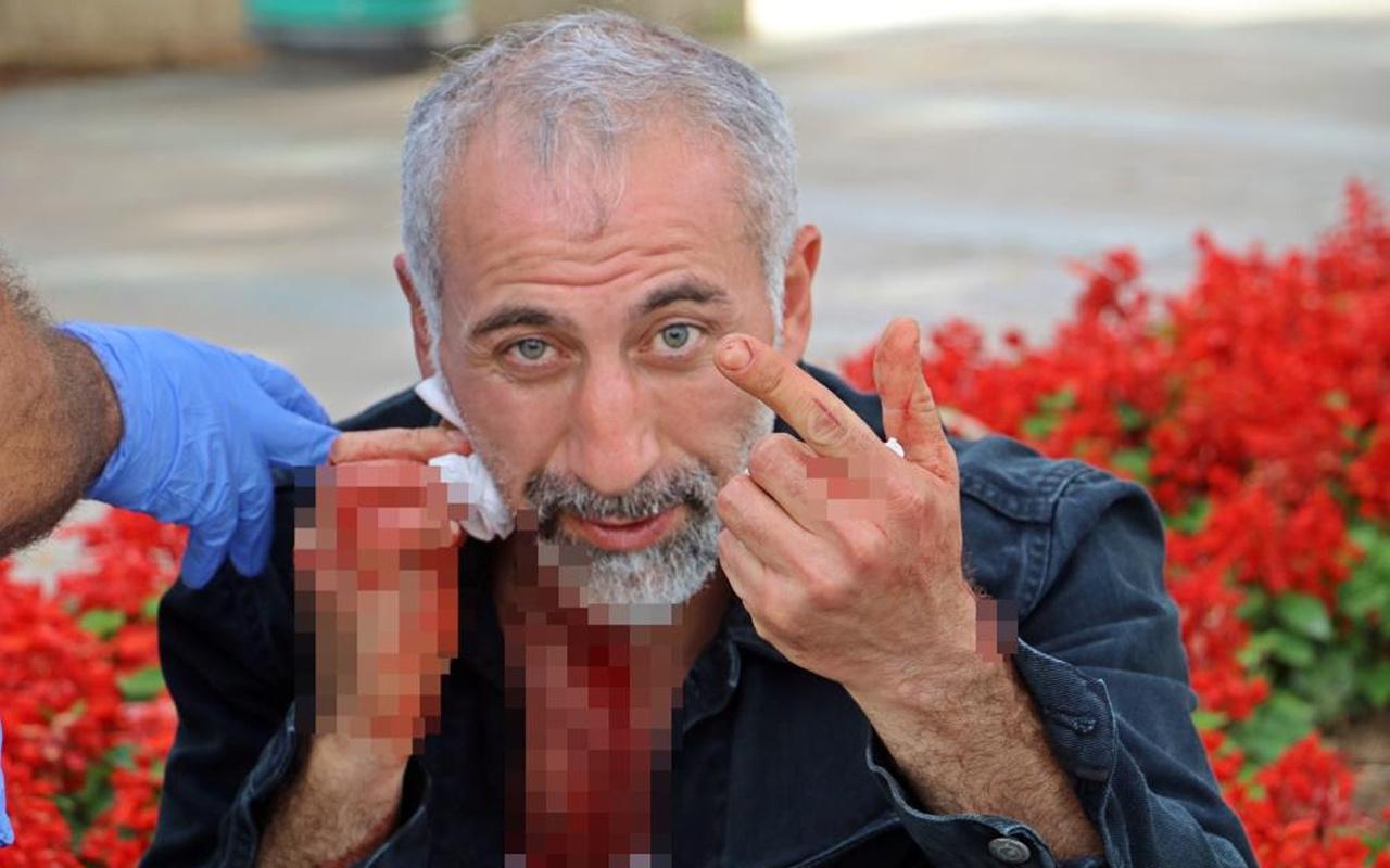 Antalya'da neşterle bir anda boğazını kesti! Sebebi ise şok etti: Kanallara çıkayım da...
