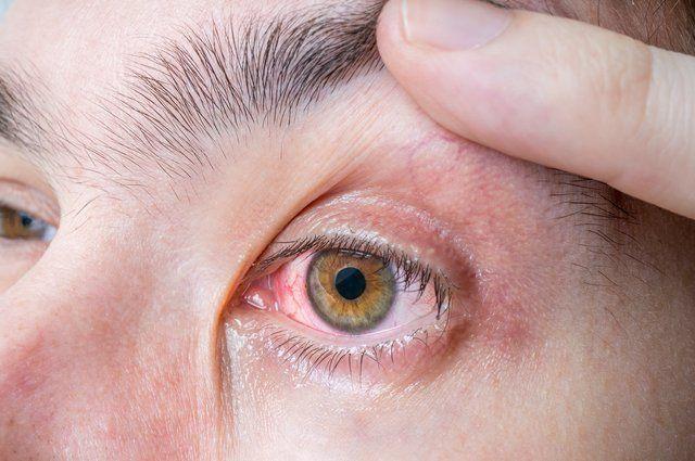 Gözde sinek uçuşması neden olur tedavisi var mı?