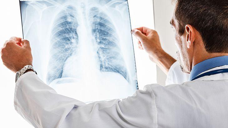 Akciğer kanseri belirtileri akciğer kanseri riskini artıran 6 faktör!
