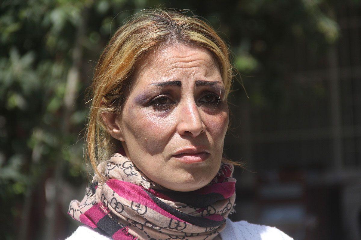 Eşi işkence edip mezarını kazmıştı! O mimar çöpten çimento üretmek için hazır