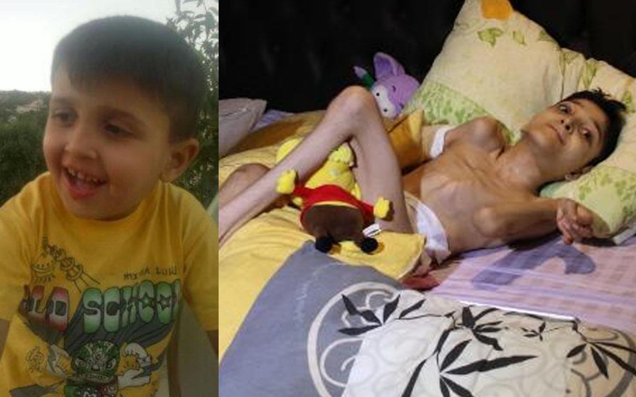Hatay'da anne 10 yıldır mücadele ediyor: Cam kemik hastası oğlu için 300 bin lira gerekli
