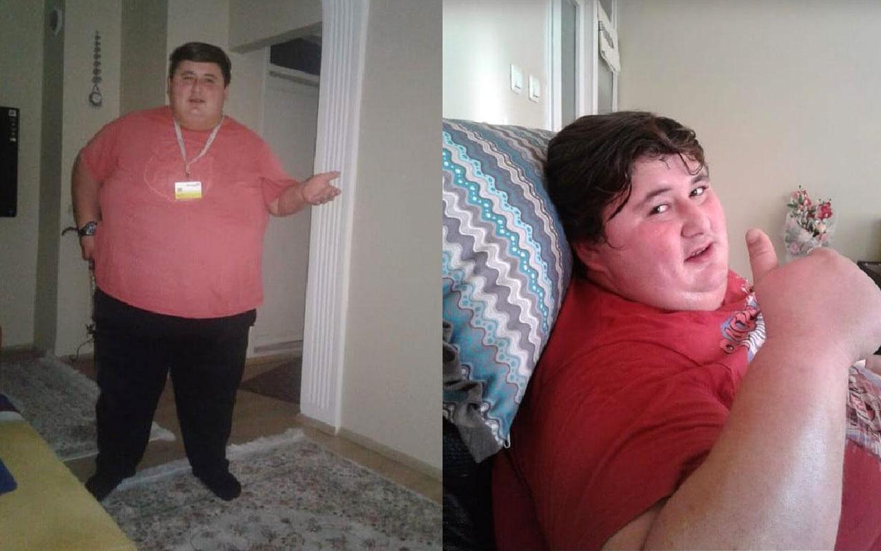 Sevgilisi beğenmeyince 212 kilo verdi, yağlardan kurtulmak istiyor