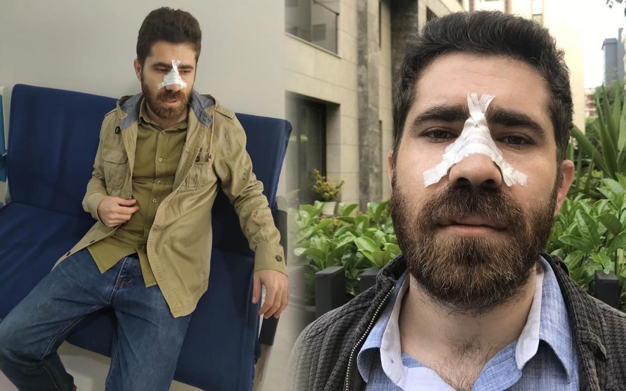 İstanbul'da sokakta pusu kurup dehşeti yaşattılar! Sebebi şok etti