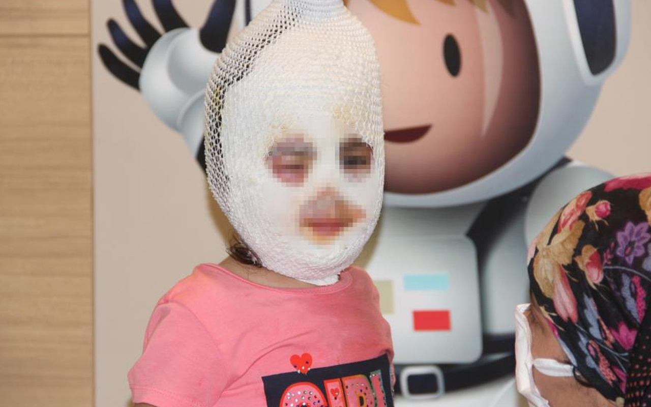 Ağrı'da kardeşiyle banyoda oyun oynamak istemişti! 4 yaşındaki Ayfer feci şekilde yandı