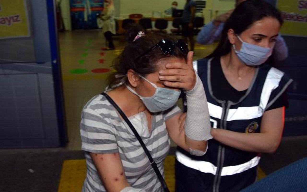 Kahramanmaraş'ta eski erkek arkadaşının yüzüne kezzap atmıştı! O kadına tahliye