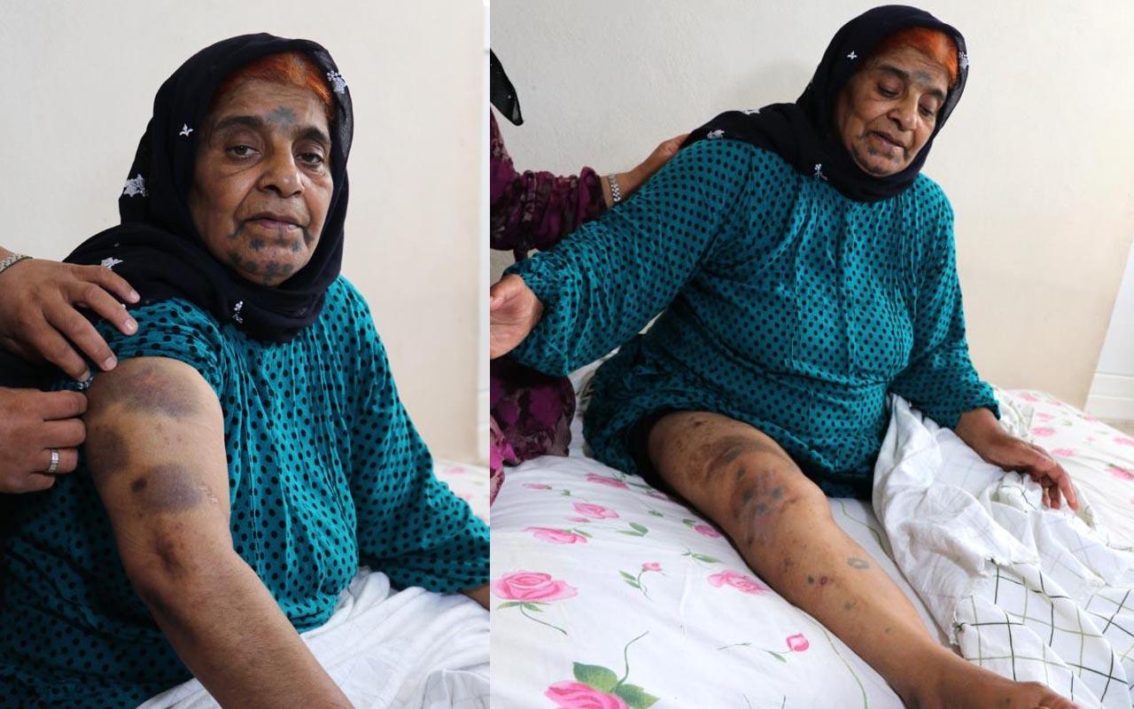 Adana'da yaşlı kadına yoğun bakımda darp iddiası!
