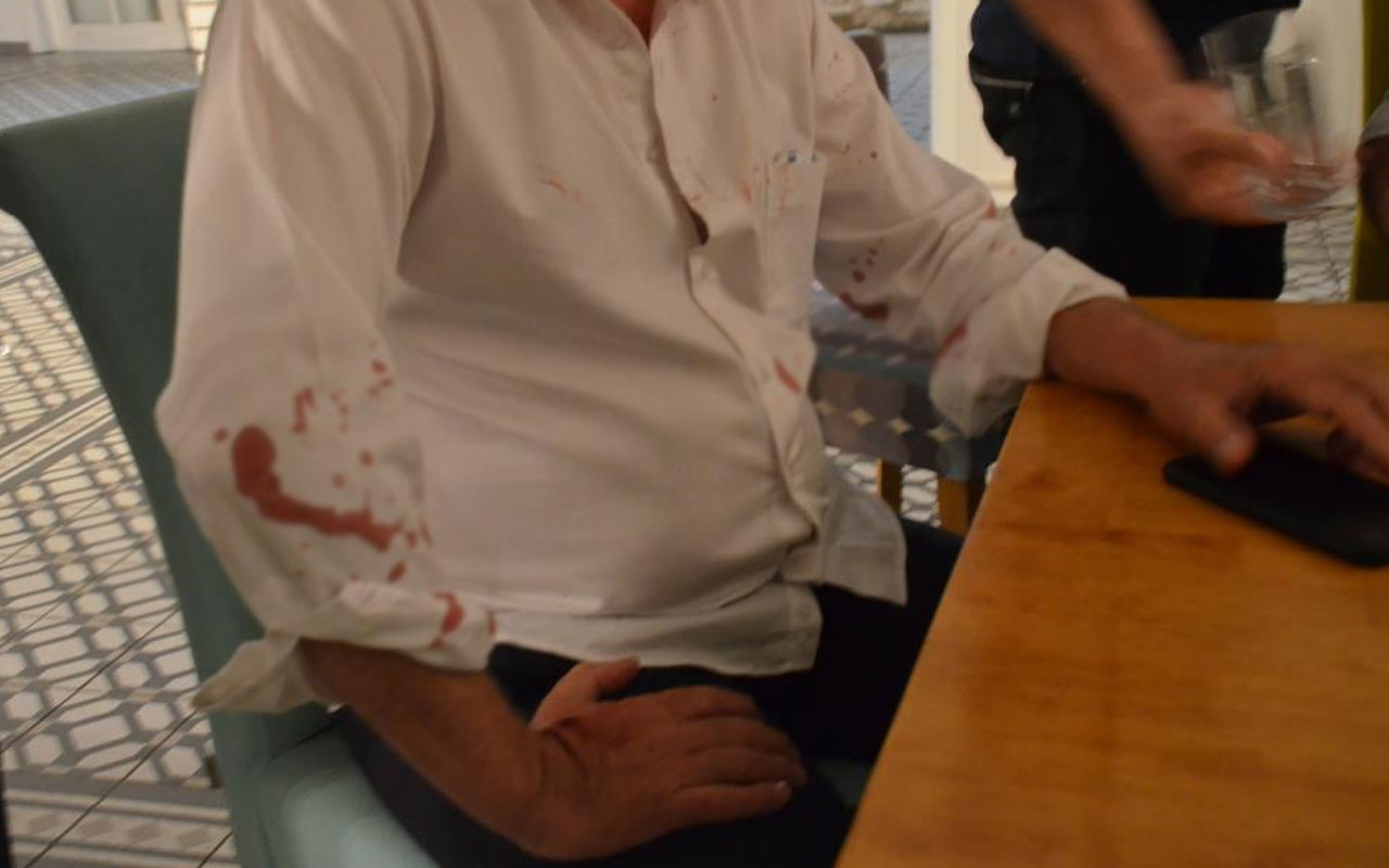 Didim Belediye Başkanı Ahmet Deniz Atabay'a beyzbol sopalı saldırı
