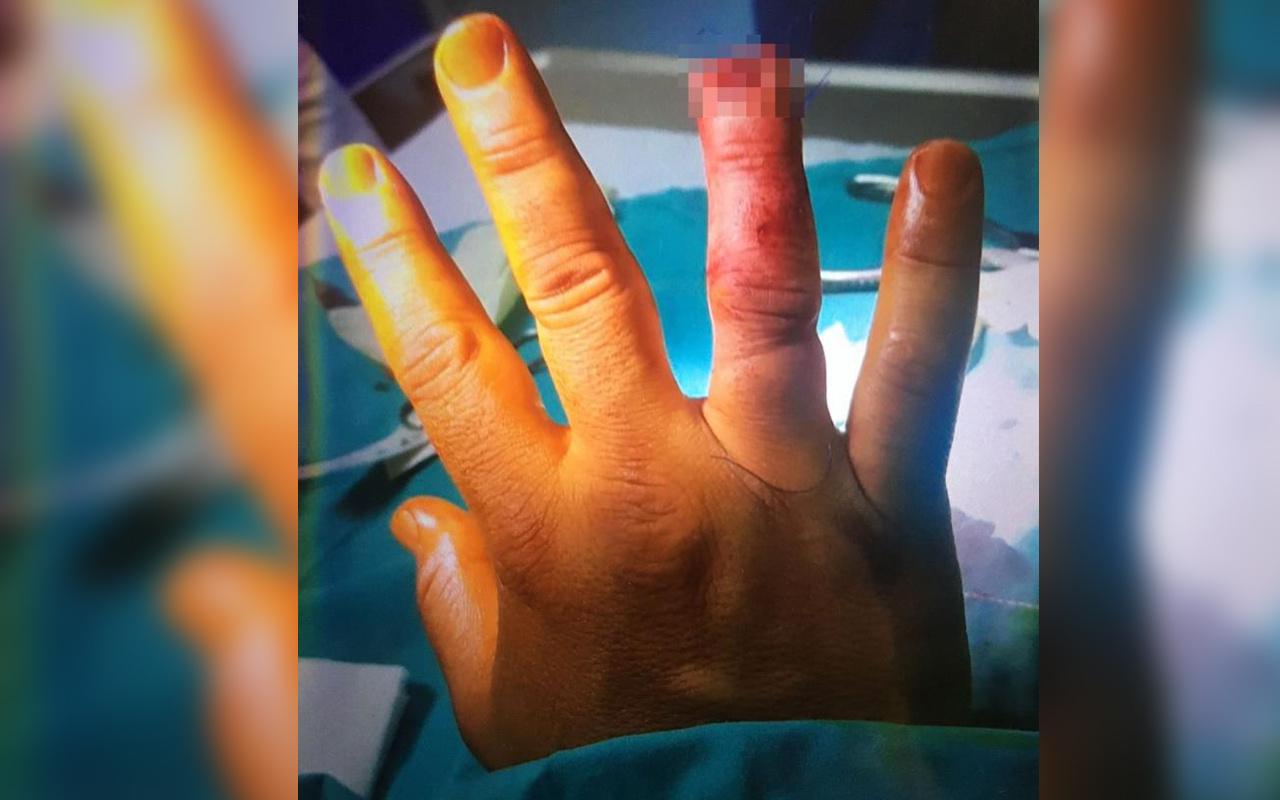 İstanbul'da alkollü kadın güvenlikçinin parmağını kopardı! Sebebi şok etti