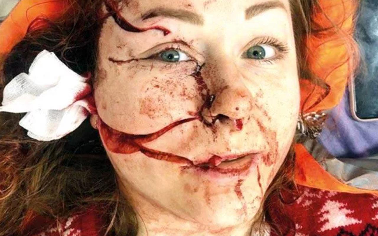 İstanbul'da eşinin yüzünü falçatayla doğradı mahkeme iyi hal verdi