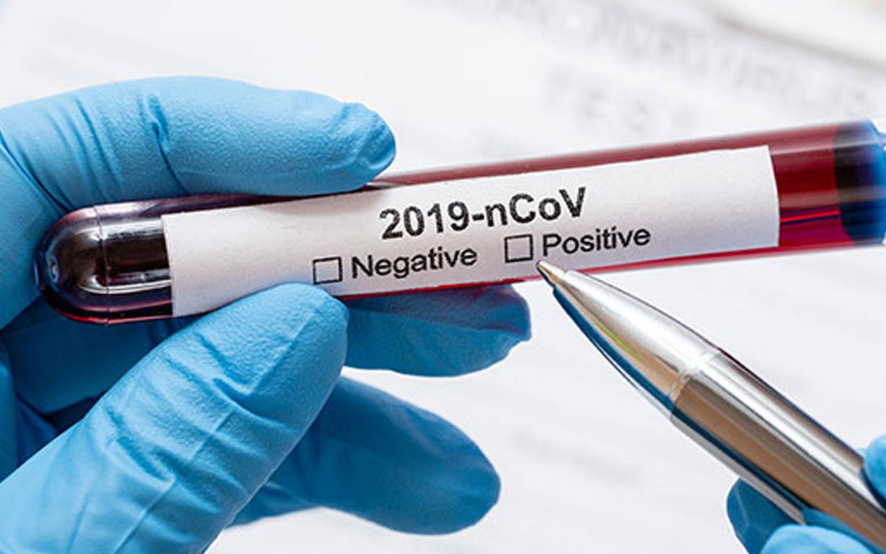 Türkiye 23 Ekim 2021 koronavirüs vaka ve ölü sayısı! Sağlık Bakanlığı Covid-19 tablosu
